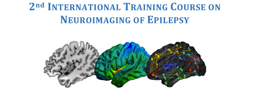 2nd  International Training Course on Neuroimaging of Epilepsy - Montreal - May 17-20, 2018